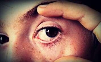 Concentratieproblemen-burnout-stress-stressplein